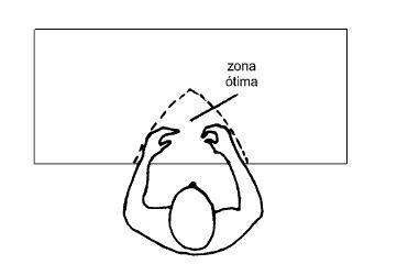 Zona Otima